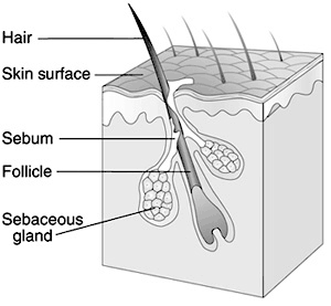 Hair Follicle and skin cancer