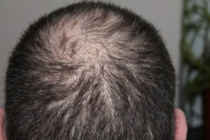 Laser Hair Growth Cap For Man hair loss balding