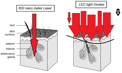 Laser vs LED lights for hair growth therapy