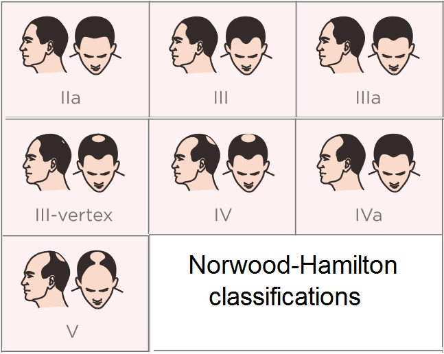 Norwood-Hamilton classifications scale of hair loss in MEN Capillus laser hair growth helmet