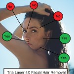 Is Tria Laser Hair Removal Safe For The Face