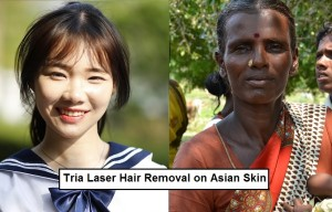 Tria laser on asian chinese vs indian