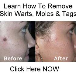 Laser Hair Removal Over Moles