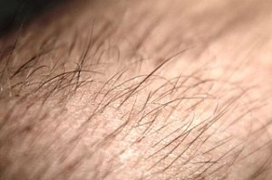 Laser Hair Removal Burned Hair Danger