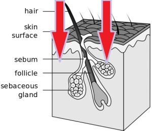 laser hair growth for corner of forehead